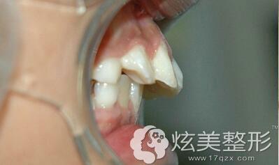 牙齿弧度比较特殊案例图四川娇点整形