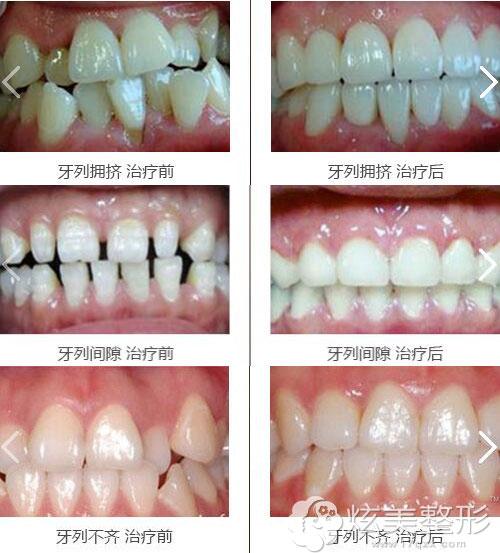 四川娇点整形矫正牙齿案例效果展示