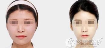 面部吸脂案例展示
