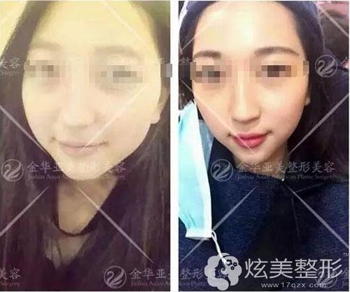 金华亚美瘦脸针前后对比案例