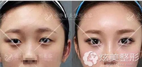 金华亚美双眼皮案例