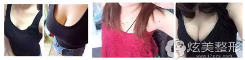 伊莱美整形隆胸前后对比