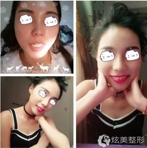 郑州伊莱美牙齿整形真人案例