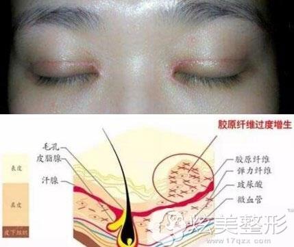 双眼皮疤痕增生示意图解