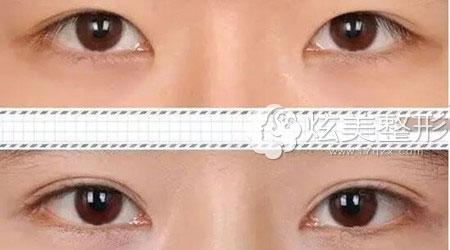珠海陆达整形曾超院长双眼皮成功案例