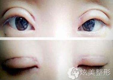 疤痕增生期疤痕增生案例