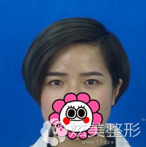 北京凯润全切双眼皮案例术前图
