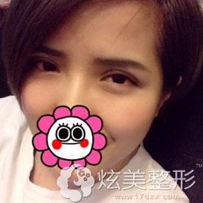 双眼皮的初步形态已经出来了北京凯润婷案例