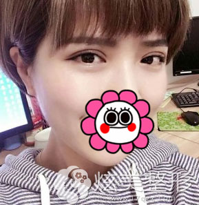 北京凯润婷双眼皮案例术后4天的样子