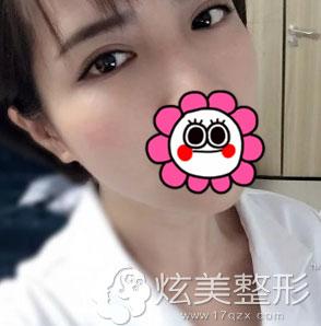 术后10天拆线北京凯润婷双眼皮案例
