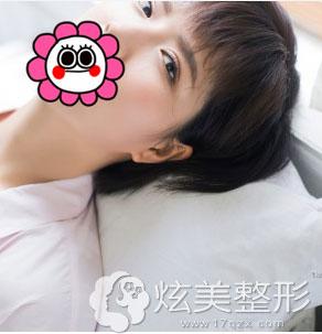 术后90天北京凯润婷双眼皮案例效果