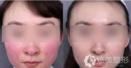 祛红血丝真人案例韩国童颜中心
