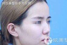 大连何医生整形案例:综合隆鼻+膨体鼻基底填充矫正我的驼峰鼻