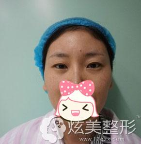 淮南华美整形双眼皮手术术前图
