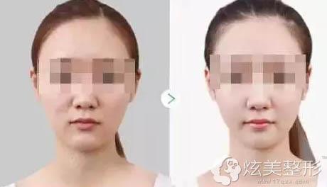 水光注射+无针水光美白皮肤真人案例