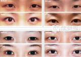 北京整形医院优惠价助攻七夕:双眼皮等口碑项目帮你约会美上天