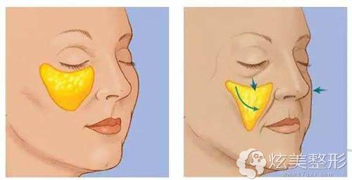 鼻唇沟加深是面部衰老的表现