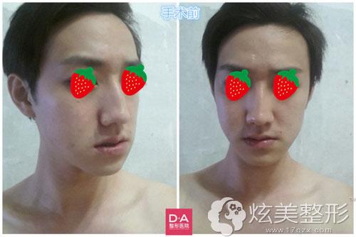 韩国DA男士面部整形术前照片