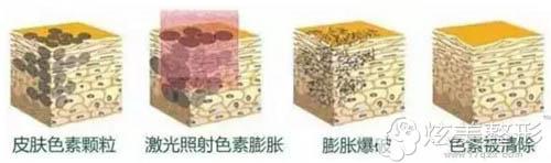 合肥刘大夫整形激光祛斑原理