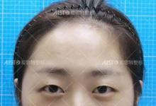 分享我花6580元找重庆爱思特真伊整形卢刚做眼综合3个月恢复情况