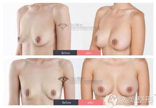 杏林整形专家史灵芝乳房下垂矫正前后对比