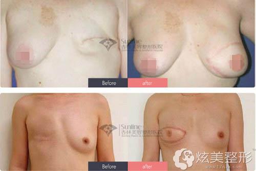 史灵芝专家乳房再造前后对比