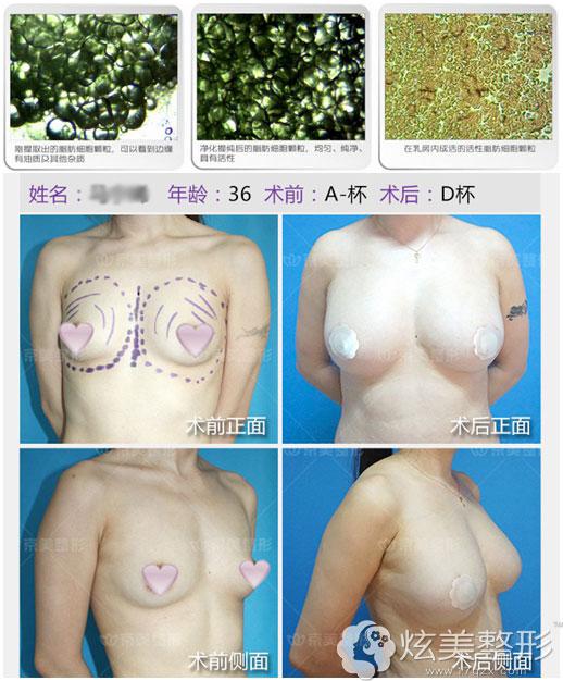 刘成胜专家自体脂肪丰胸案例