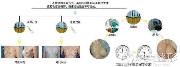 王自谦自体脂肪隆胸过程以及案例