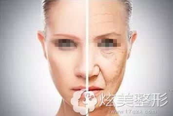 脸部下垂筋膜层胶原流失示意图