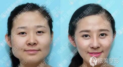 武汉美基元瘦脸针案例