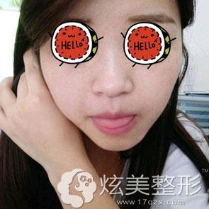 祛斑案例术后效果上海玫瑰