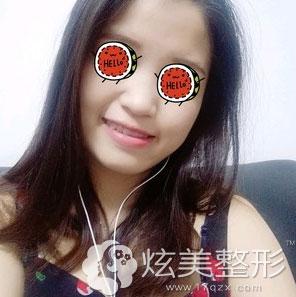 上海玫瑰祛斑案例真人术后效果