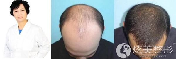 头发种植推荐刘亚莉专家案例