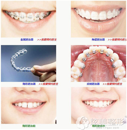 深圳北大口腔医院牙齿矫正器以及案例