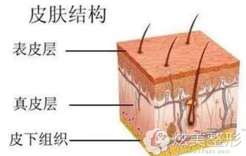 皮肤结构来解答疤痕是怎么形成的