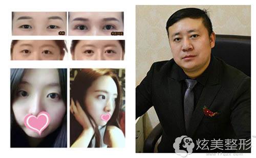 擅长眼部整形的上海古北悦丽专家杨帆