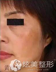 彩光嫩肤可以祛黄褐斑吗?福州比华利林秋蓉专家案例告诉你