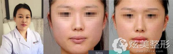 房亚萍专家瘦脸针案例分享