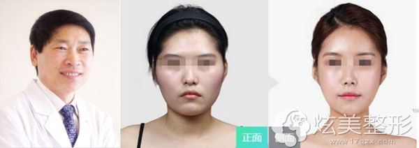 柳龙春专家 颧骨整形案例