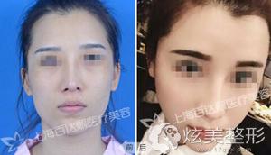 上海百达丽自体脂肪填充案例