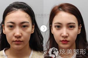 上海华美自体脂肪填充案例