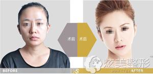 上海伊莱美整形脂肪填充案例