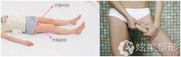 自体脂肪移植优先选取大腿内侧脂肪