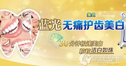 广州德伦口腔蓝光美白牙齿技术