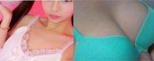 哈尔滨超龙曼托水滴形假体隆胸分期月供2333元,看案例图