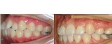 整牙日记:上海拜博口腔沈刚院长给我做的牙齿矫正,暑期85折