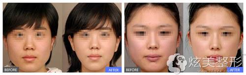 滕州时光注射瘦脸针案例