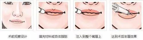 薄唇增厚术流程