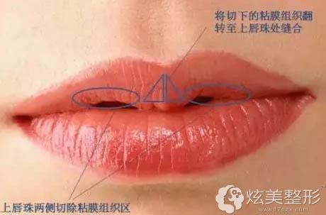 M唇形成手术原理