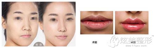 M唇形成术前后对比